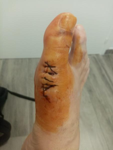 El Surdo ha sido intervenido de su grave lesión en la articulación metatarsofalángica del hallux o MTF